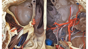 Transverse Cut of Head at the Level of the Maxillary sinus