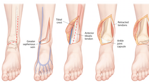 Revealing the Tibial Plafond