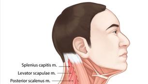 Occipital Triangle