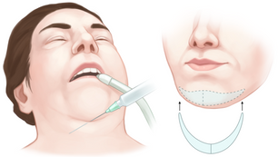 Local Anesthesia for Chin Implant