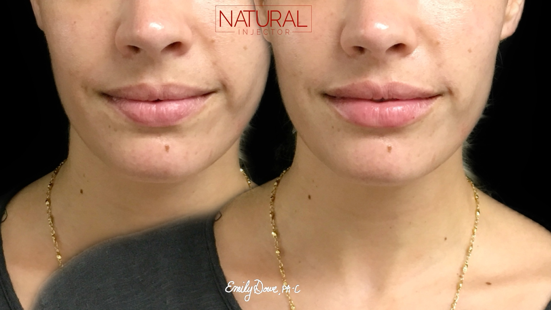 Lips for Less | Botox | United States | Natural Injector