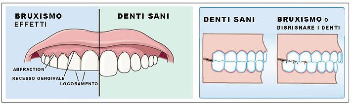 effetti-del-bruxismo-confronto-denti-san