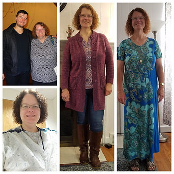 before and after weight loss surgery pics.jpg