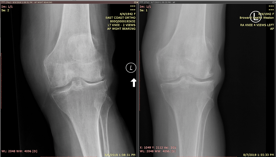 77 year old Female Before After Knee Tre