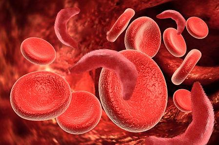 sickle cell.jpg