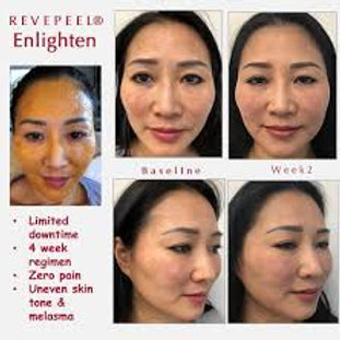 Enlighten Peel MD