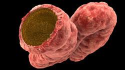 intestin-full_L.jpg