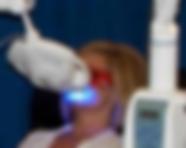Photo showing blue LED laser teeth whitening procedure
