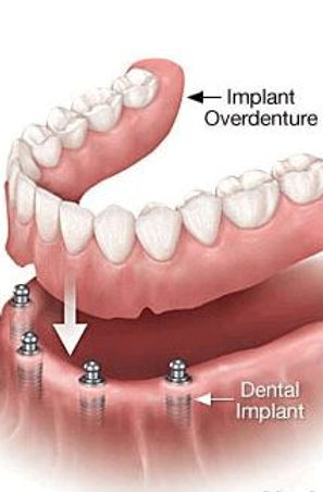 implant_denture.JPG