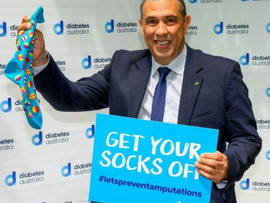 FEDERAL MEMBER FOR LONGMAN TERRY YOUNG MP GETS SOCKS OFF TO PROMOTE DIABETES AWARENESS
