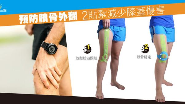 預防髕骨外翻 2貼紮減少膝蓋傷害