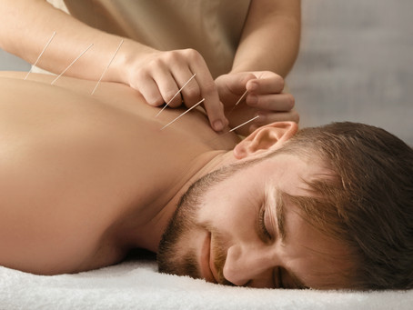 Do you know the benefits of a dry needling treatment?