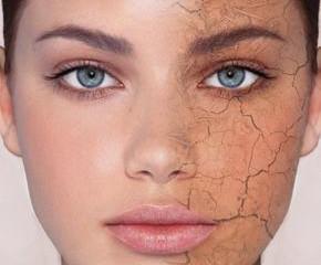 עור יבש - לטפל בדרך טבעית