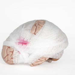 Facts About Traumatic Brain Injury