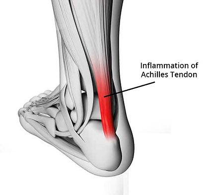 achilles-tendonitis or achilles heel
