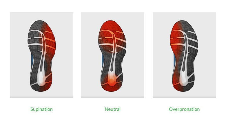 Foot Pronation and shoe wear and tear in underpronation and overpronation