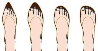 Pain in Feet because of Slipper and Sandal design