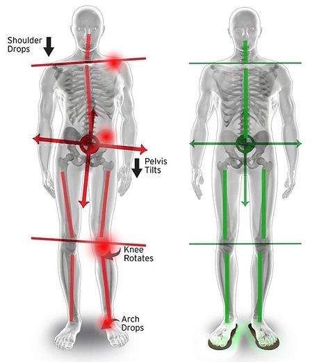 Foot Pain effect on Posture, Flat Foot and Plantar Fasciitis effect on body