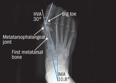 Hallus Valgus X ray.jpg
