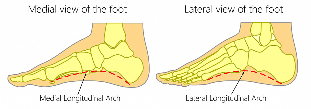 Fallen arch foot, Low arch foot and High Arch of foot