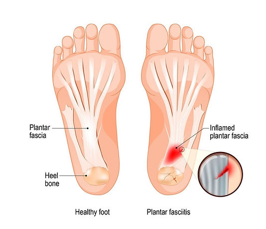 Plantar Fasciitis and Healthy foot comparison