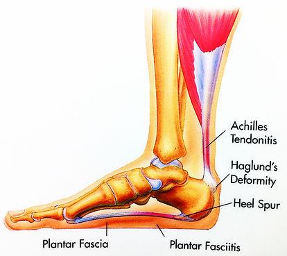 foot22.jpg