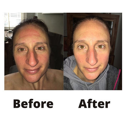 Before After-2.jpg