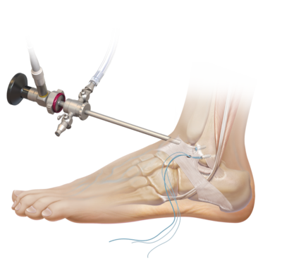 ankle arthroscopy and ligament reconstruction