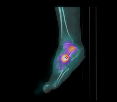 SPECT scan ankle