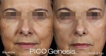 PICO-Genesis-Before-After-2.jpg