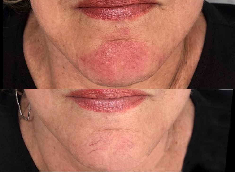 before/after rosacea