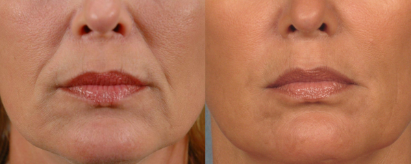 Juvederm-Filler-to-Nasolabial-Folds-and-