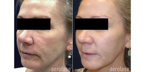 facial-rejuvenation-pinski-after-2-tx.jp