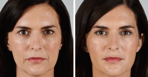 vollure_allergan_before_after_edited