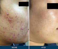 Skin Pen - Acne & Acne Scarring