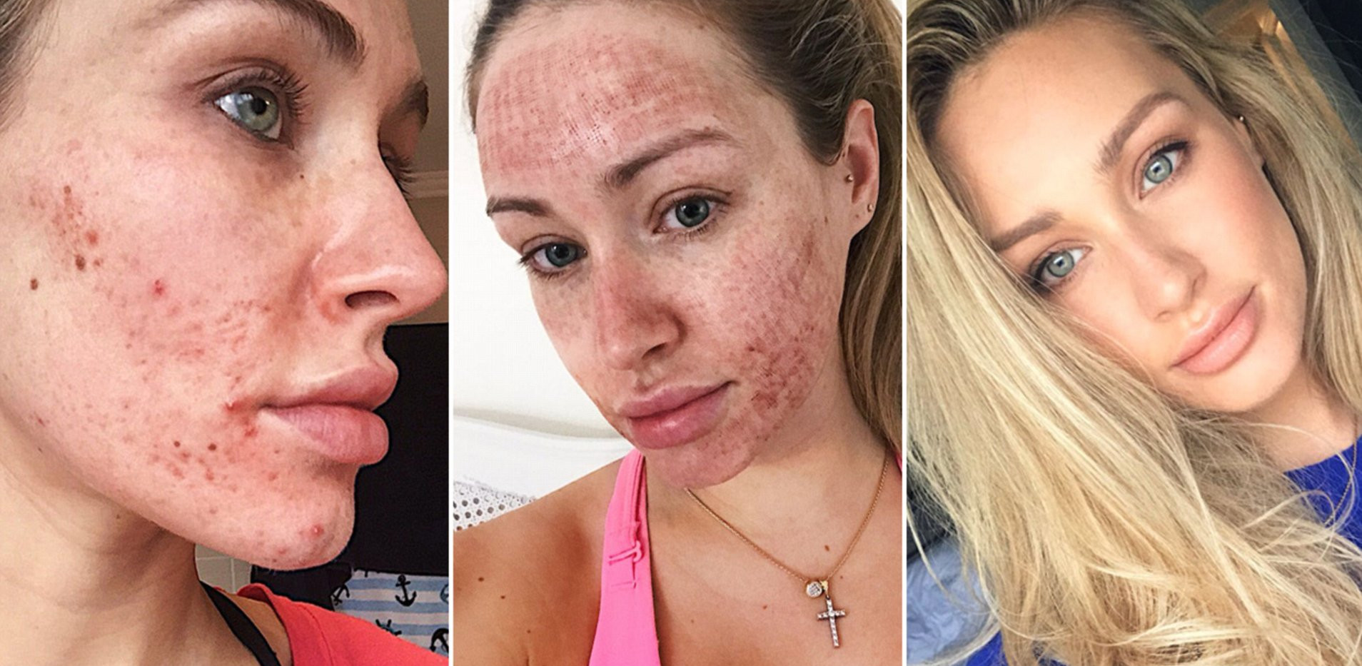 Pixel Perfect - Acne Scarring