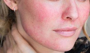 redness-on-face-2-696x409.jpg