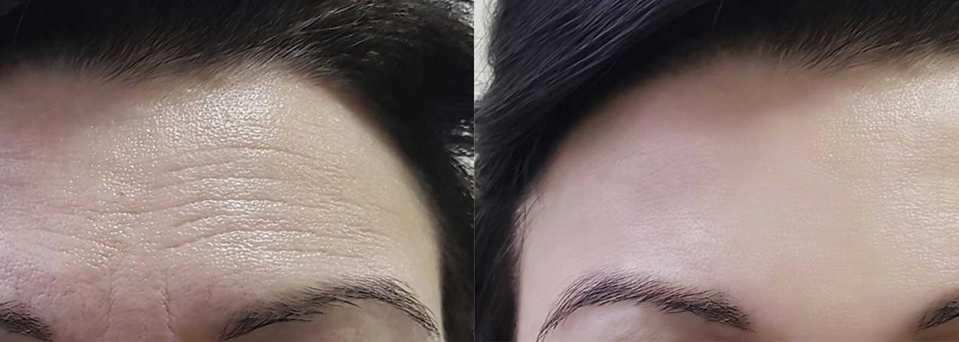 forehead b/a