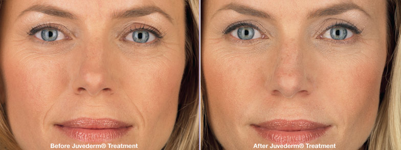 Terrasse-Juvederm_before_and_after_