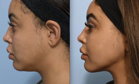 KyBella Before&After.JPG