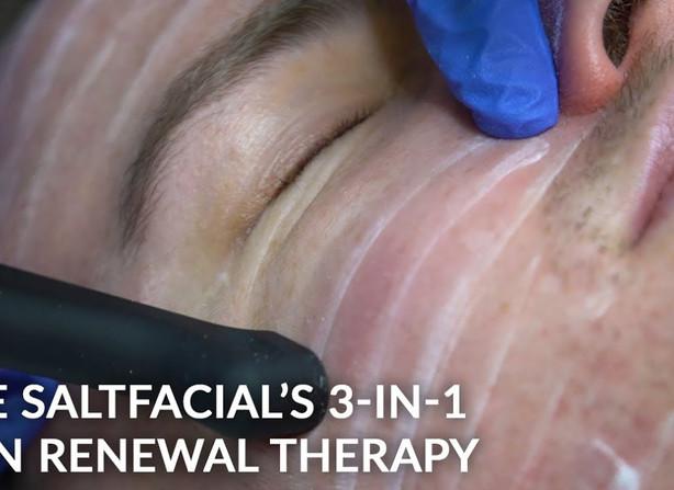 Salt Facials - Acne / Acne Scarring