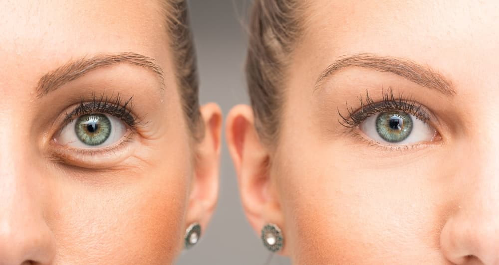 crows feet and botox treatment in housto