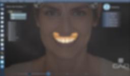 DentalCAD Interface 4