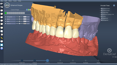 DentalCAD Interface 1
