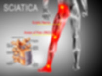 sciatica-pain-colorado-pain-care-blog.jp