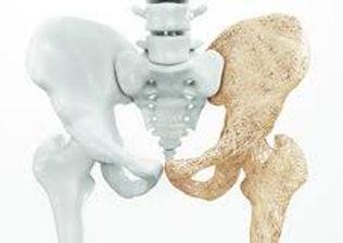 Osteoporosis Pic - Social Media - Worksh