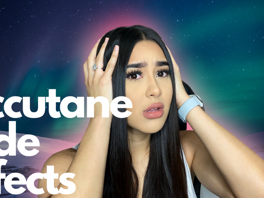 Accutane Side Effects & What to expect!