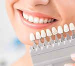 dental-veneers-and-dental-laminates-head