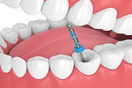 1568035252429Root-Canal-Treatment.jpg