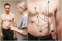 24-hr-holter-monitoring-250x250.jpg
